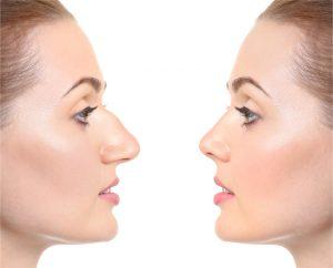 bulbous nose rhinoplasty
