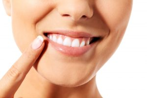 straightening teeth naturally