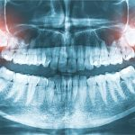 nerve damage from wisdom tooth extraction