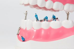 routine dental care