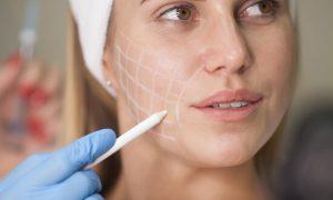 sagging face treatment