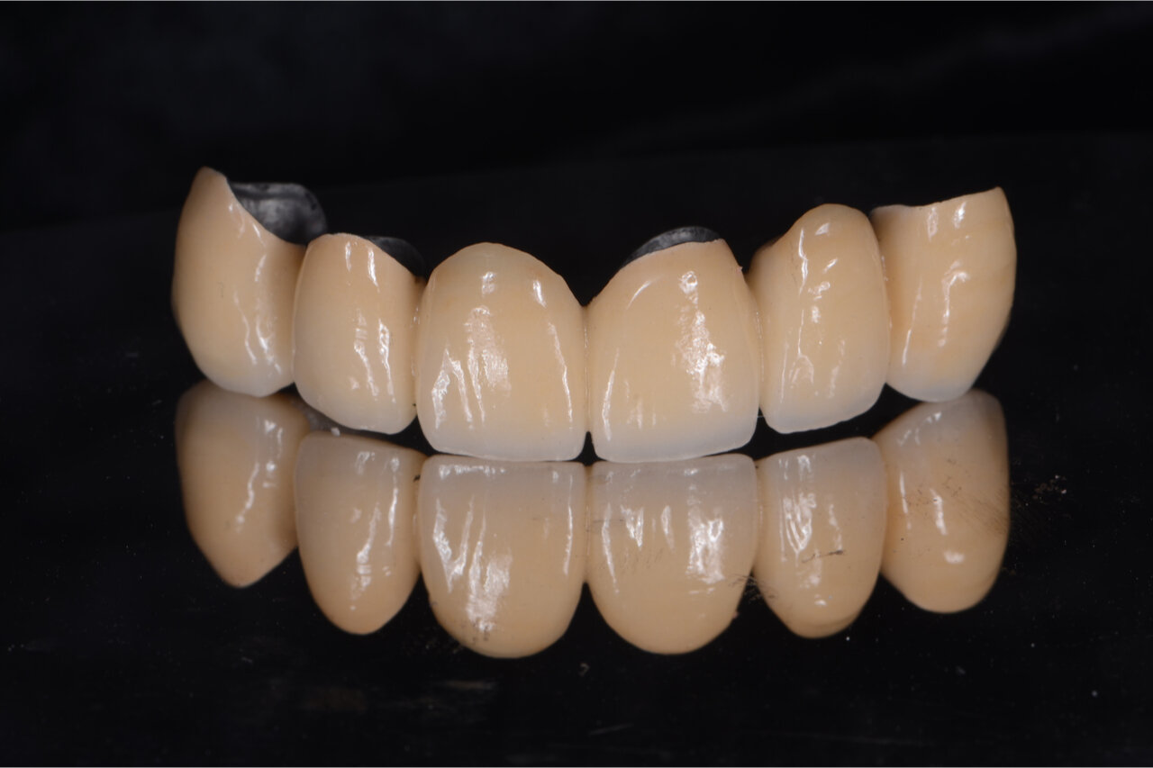 An example of porcelain fused to metal crowns to restore teeth