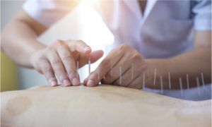 Acupuncture can relieve stress as well.