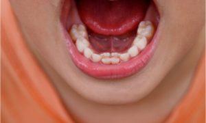 shark teeth appearance